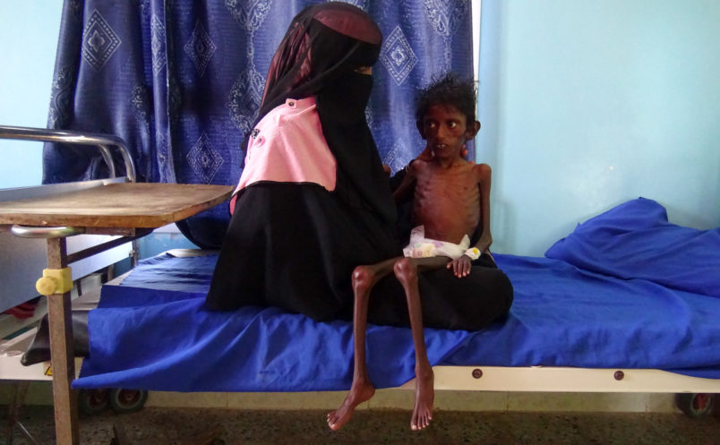 EDITORS NOTE: Graphic content / This picture taken on November 22, 2018 shows Yemeni mother Nadia Nahari holding her five-year-old son Abdelrahman Manhash, who is suffering from severe malnutrition and weighing 5 kilograms, as she sits on a bed at a treatment clinic in the Khokha district in the western province of Hodeidah. - As many as 85,000 infants under the age of five may have died from starvation or disease since 2015 in war-ravaged Yemen, humanitarian organisation Save the Children said on November 21, basing its estimate on UN-compiled data, which has warned that up to 14 million people are at risk of famine in Yemen where Saudi-backed forces are battling Iran-aligned Huthi rebels. (Photo by - / AFP) (Photo credit should read -/AFP/Getty Images)